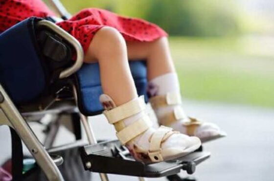 Cerebral Palsy: Early Intervention Can Make a Difference